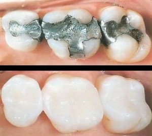 cosmetic white tooth colored fillings replace old amalgam silver fillings