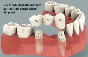 Fixed Dental Porcelain Bridge in Allen TX and Plano TX