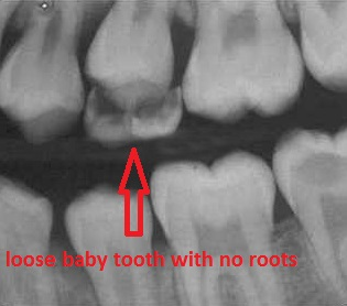 Loose baby teeth ready to fall out on x-ray
