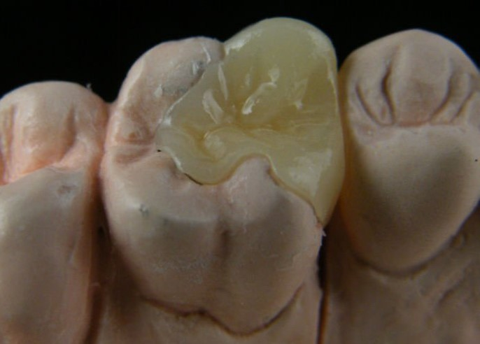 conservative dental treatment in allen tx for a broken tooth is porcelain onlay