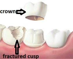 broken tooth needs a dental crown or cap