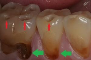 acid reflux (GERD) causes acid erosion of teeth