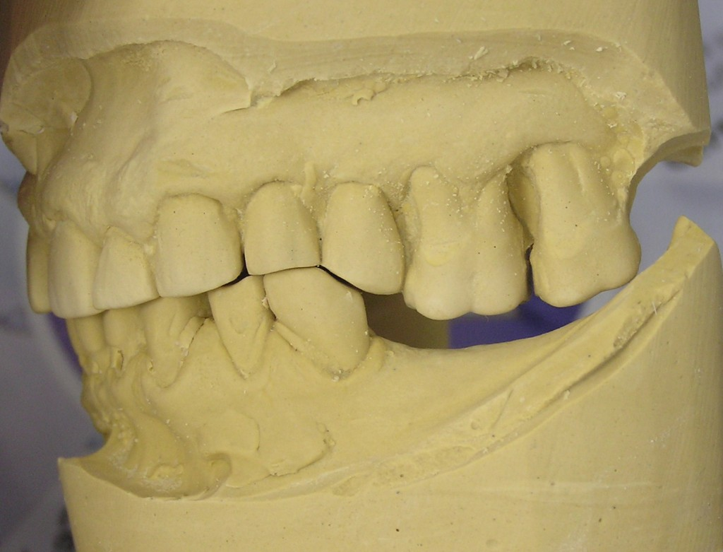 supraeruption as a result of dental extraction from toothache and teeth pain