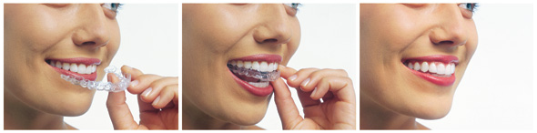 Invisalign Orthodontic Treatment at Allen Dental Office
