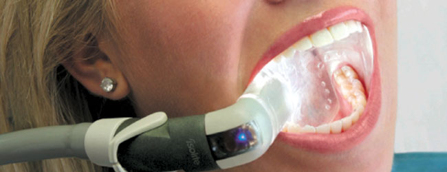 Isolite System for Increased Efficiency and Comfort in High Tech Allen Dental Center