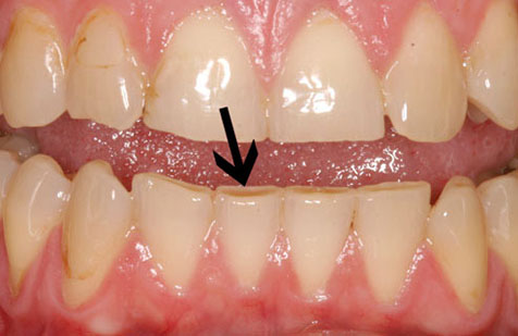nightguard for middle stage teeth grinding