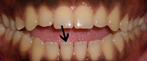healthy teeth with no wear from grinding