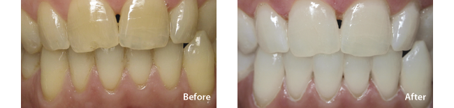 Teeth Whitening and Teeth Bleaching for a Dramatic Smile Makeover in Allen, TX Dental Office